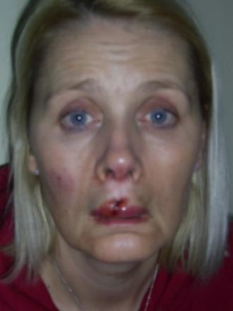 Charity worker Angela Gray, who was scarred for life after being attacked by Jade Daniels