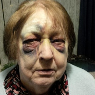 A police image of a battered elderly victim after she was set upon by a gang of four muggers
