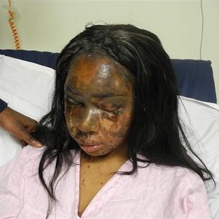 Messenger Newspapers: Injuries sustained by Naomi Oni after she acid thrown in her face by Mary Konye who has been found guilty today at London's Snaresbrook Crown Court.