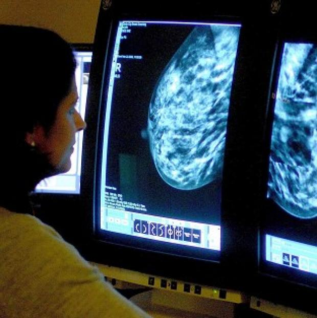 Messenger Newspapers: Until recently, smoking was not thought to affect breast cancer risk